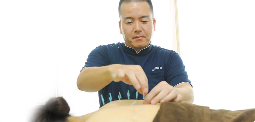 福岡市南区塩原の「山中鍼灸院」の鍼灸イメージ