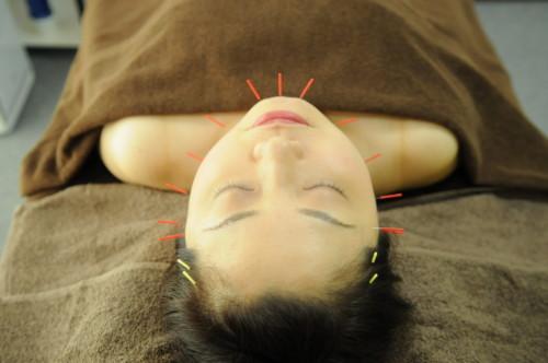 美容鍼コースの選び方