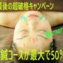 平成最後の美容鍼キャンペーン 最大で50%Off